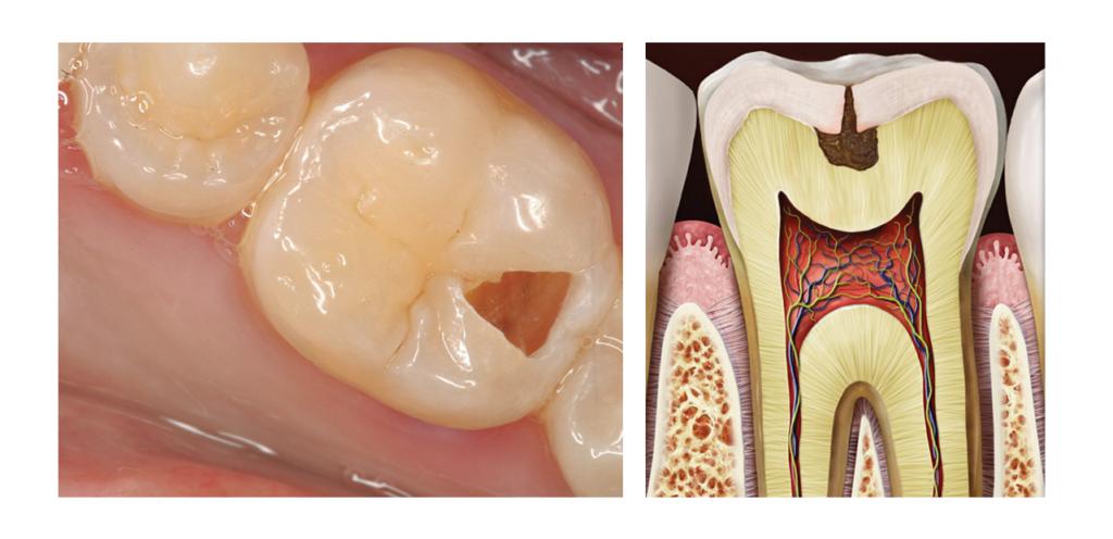 hambad valutavad